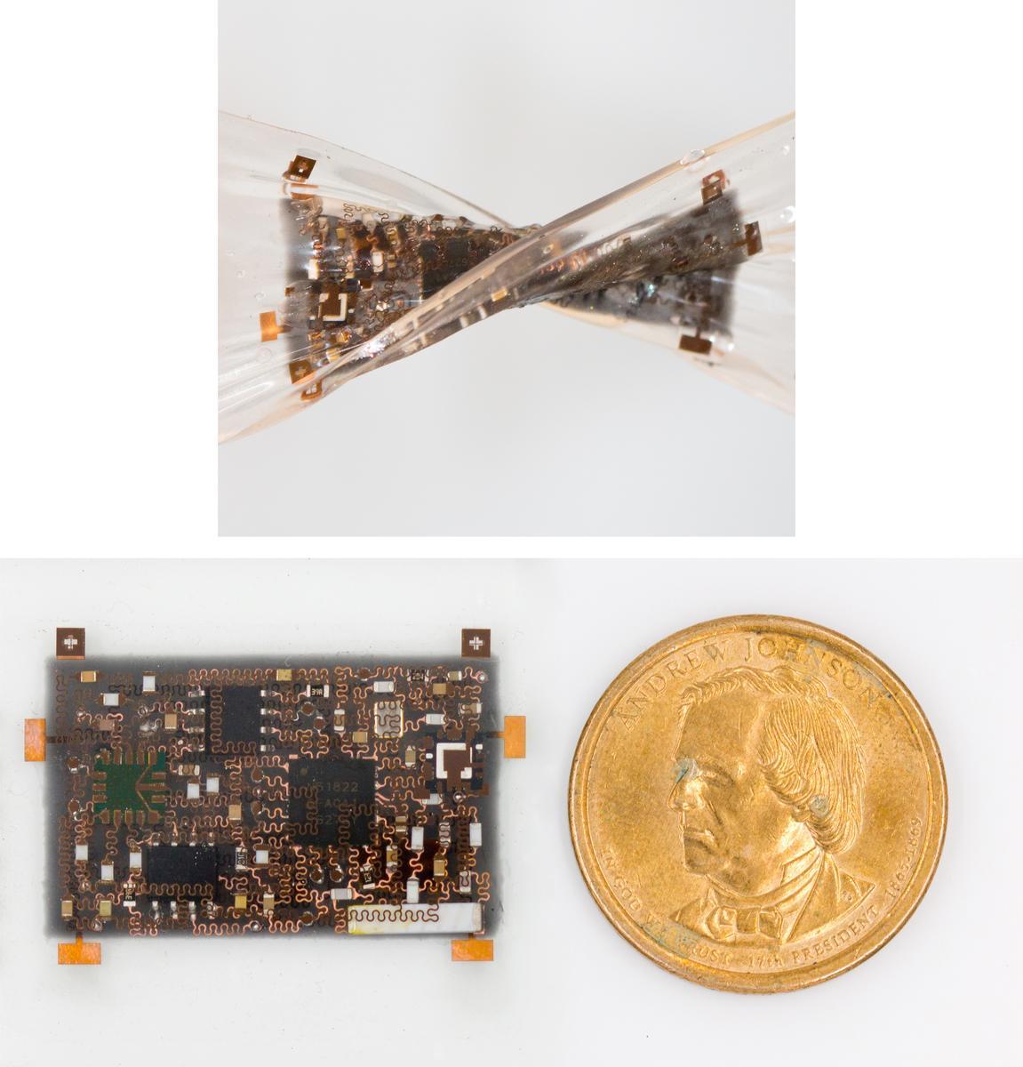 3D stretchable electronics smart bandage