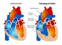 NIH awards researchers $3.1 million grant to improve treatment of common pediatric heart condition
