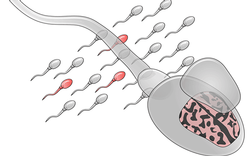 Measuring Mutations in Sperm May Reveal Risk for Autism in Future Children